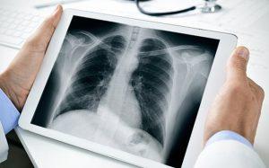 Quy định về bảo đảm an toàn bức xạ trong y tế